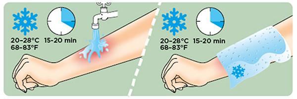Pierwsza pomoc oparzenia chłodzenie